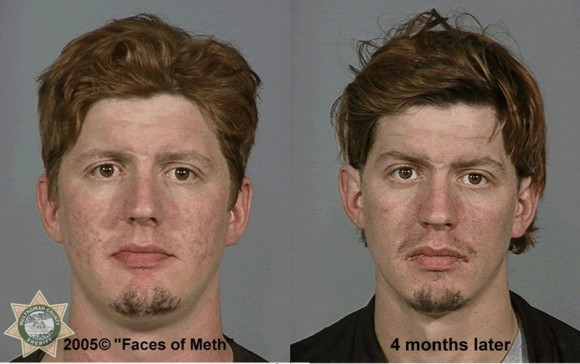 Faces Of Meth 6