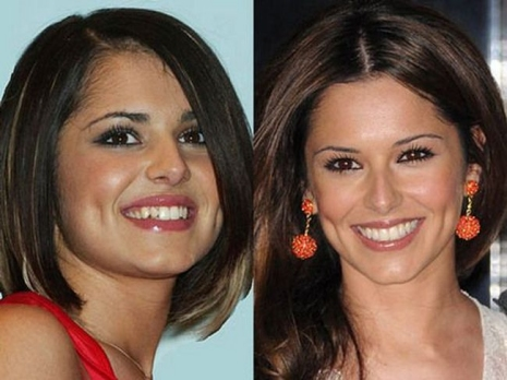 Celebrity Teeth Then & Now 2
