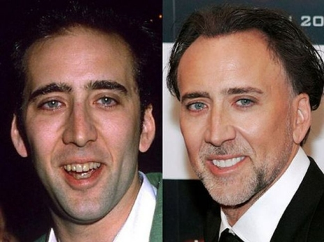 Celebrity Teeth Then & Now 3