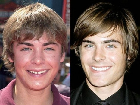 Celebrity Teeth Then & Now 4