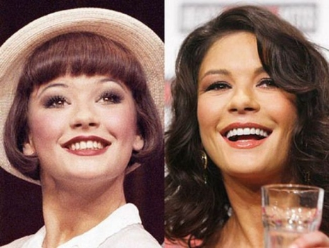 Celebrity Teeth Then & Now 7