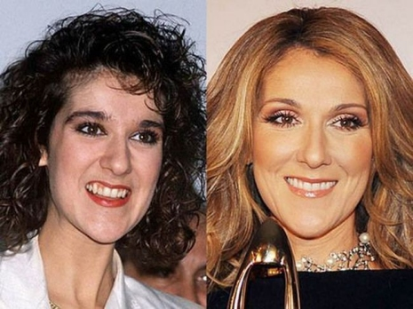 Celebrity Teeth Then & Now 9